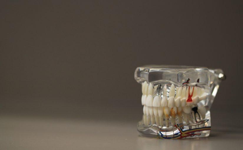 Zła metoda odżywiania się to większe niedobory w jamie ustnej natomiast również ich utratę